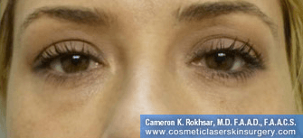 Non-Surgical Eye Lift. After Treatment Photo - front view, female patient 5