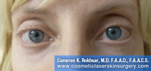 Non-Surgical Eye Lift. After Treatment Photo - front view, female patient 7