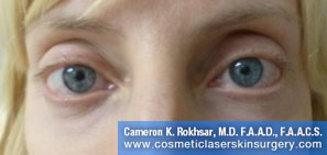 Non-Surgical Eye Lift - After Treatment Photo - patient 3