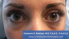 Non-Surgical Eye Lift. Before Treatment Photo - front view, female patient 9