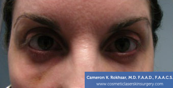 Non-Surgical Eye Lift. Before Treatment Photo - front view, female patient 8