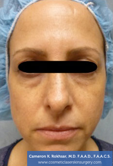 Non-Surgical Eye Lift. Before Treatment Photo - front view, female patient 6