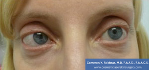 Non-Surgical Eye Lift. Before Treatment Photo - front view, female patient 7