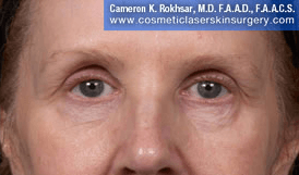 Eyelid Rejuvenation - After Treatment Photo - patient 8