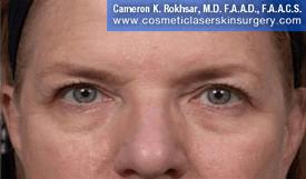 Eyelid Rejuvenation - After Treatment Photo - patient 6