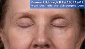 Eyelid Rejuvenation - After Treatment Photo - patient 9