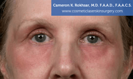 Eyelid Rejuvenation - Before Treatment Photo - patient 8