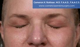 Eyelid Rejuvenation - Before Treatment Photo - patient 7