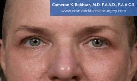 Eyelid Rejuvenation - Before Treatment Photo - patient 6