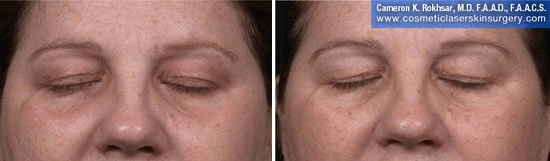 Fraxel - Before and After Treatment photo, female, front view - patient 34