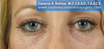Non-Surgical Eye Lift - After Treatment Photo - patient 6