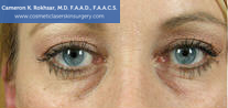 Non-Surgical Eye Lift. Before Treatment Photo - front view, female patient 10