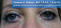 Non-Surgical Eye Lift - After Treatment Photo - patient 7