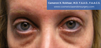 Non-Surgical Eye Lift. Before Treatment Photo - front view, female patient 11