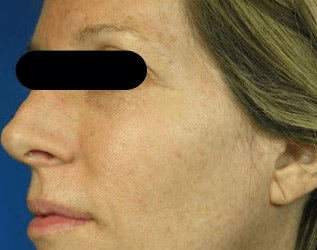 Fraxel - Before Treatment photo, female,left side view - patient 23
