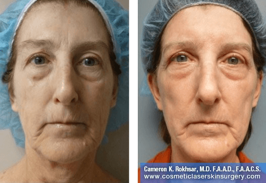 Fraxel - Before and After Treatment photo, female, front view - patient 27