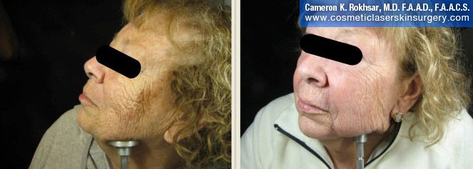 Fraxel - Before and After Treatment photo, female,left side view - patient 25