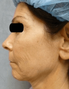 Fraxel and stretch marks - Before Treatment photo - patient 5