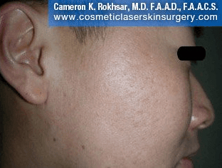 Fraxel - After Treatment photo, male, right side view - patient 21