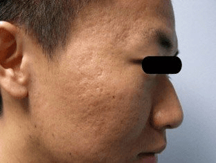 Fraxel - Before Treatment photo, male, right side view - patient 21