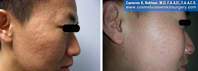Fraxel - Before and After Treatment photo, male, right side view - patient 21