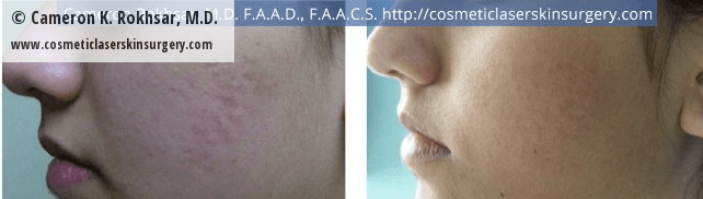 Fraxel - Before and After Treatment photo, female,left side view - patient 14