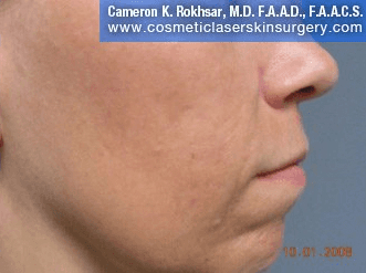 Fraxel - After Treatment photo, female,right side view - patient 16