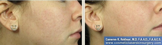 Fraxel - Before and After Treatment photo, female,left side view - patient 15