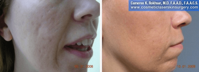 Fraxel - Before and After Treatment photo, female,right side view - patient 16