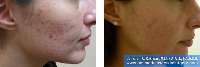 Fraxel - Before and After Treatment photo, female,right side view - patient 9