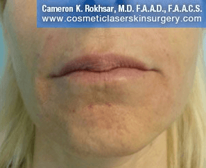 Fillers - After treatment photos, patient 1