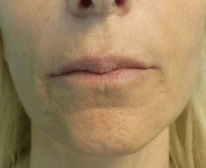 Fillers - Before treatment photos, patient 1