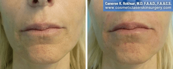 Fillers - Before and After treatment photos, patient 1