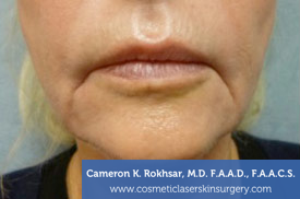 Lip Enhancement - Before Treatment Photo - patient 4