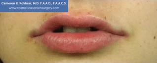 Lip Enhancement - After Treatment Photo, front view - female patient 6