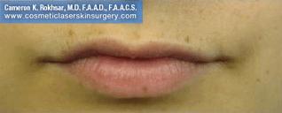 Lip Enhancement - Before Treatment Photo, front view - female patient 6