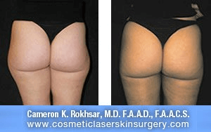 Liposuction - Before and After Treatment Photos, legs, back view - female patient 10