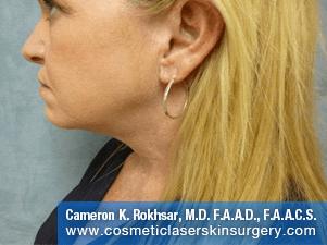 Liposculpture Liposuction - After Treatment photos, left side view, female patient 18