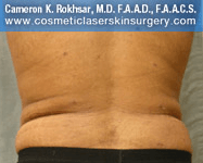Liposculpture Liposuction - After Treatment photos, back view, female, patient 17