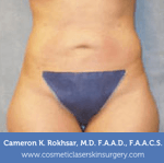Liposculpture Liposuction - After Treatment photos, front view, female, patient 16