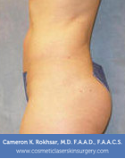 Liposculpture Liposuction - After Treatment photo, patient 2
