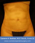 Liposculpture Liposuction - After Treatment photo, front view, female patient 12