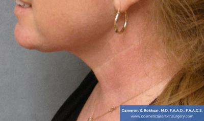 Liposculpture Liposuction - After Treatment photos, left side view, female patient 19