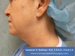 Liposculpture Liposuction - Before Treatment photos, left side view, female patient 18