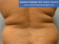 Liposculpture Liposuction - Before Treatment photos, back view, female, patient 17