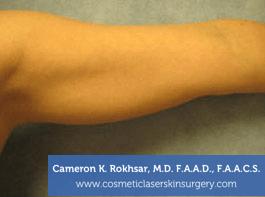 Liposculpture Liposuction - Before Treatment photos, front view, female hand, patient 15