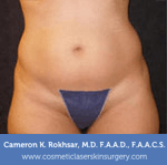 Liposculpture Liposuction - Before Treatment photos, front view, female, patient 16