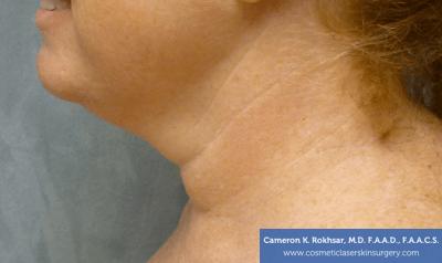 Liposculpture Liposuction - Before Treatment photos, left side view, female patient 19