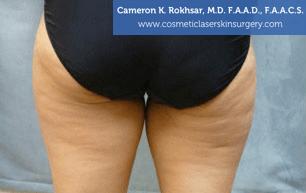 Liposonix - Before Treatment photo - patient 1
