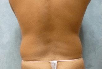 Liposuction - Before Treatment Photos, back view - female patient 8